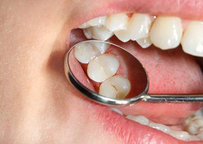 Carie dentista