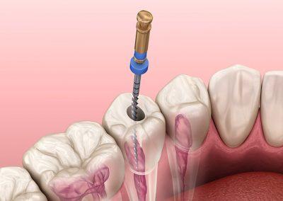 Endodonzia como