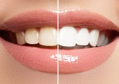 Igiene dentale como