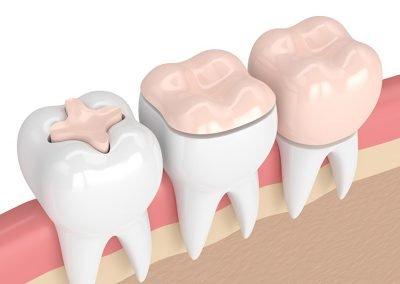 Intarsi dentista como