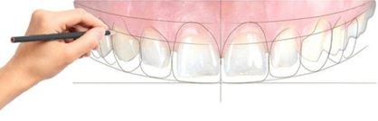 Odontoiartia estetica copia